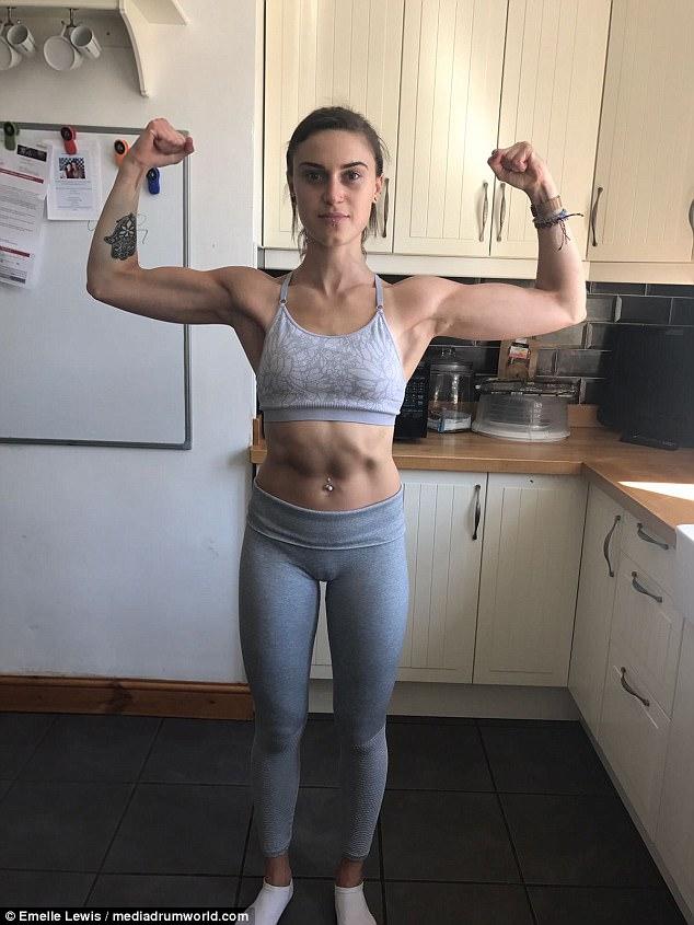 anorexia survivor