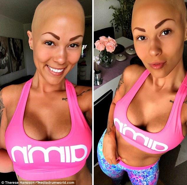 model with alopecia